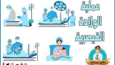 عملية الولادة القيصرية