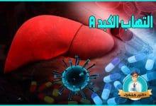 التهاب الكبد A