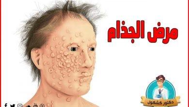 مرض الجزام