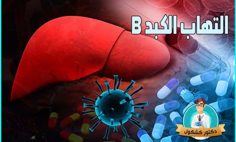 التهاب الكبد B